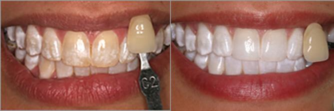 Teeth whitening in Arlington, VA