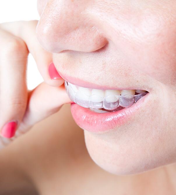 orthodontics in arlignton va