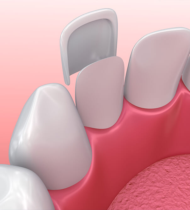 illustration of the application of a dental veneer