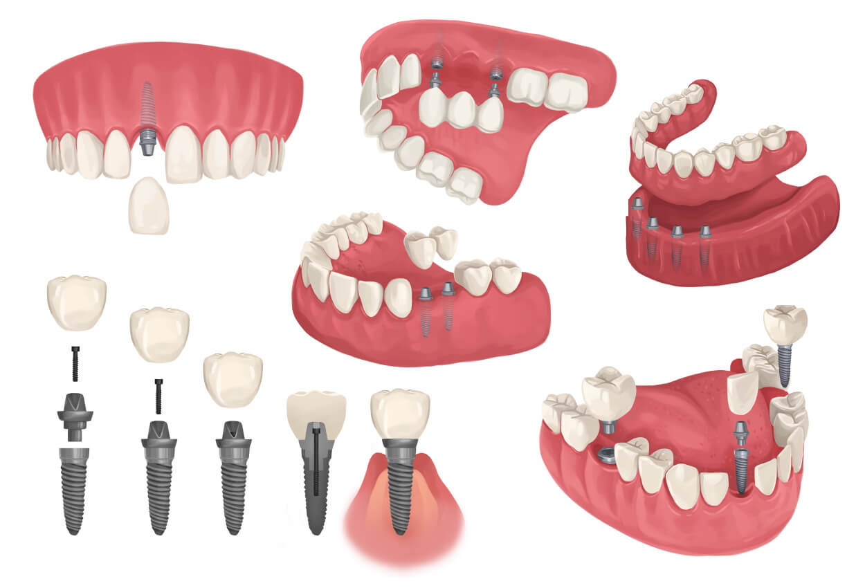 Technical drawings of dental implants: single, bridge, and dentures to replace missing teeth