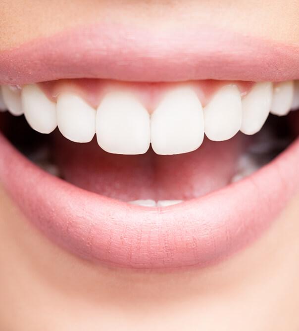closeup of a white smile